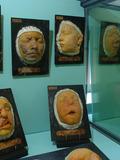 Journées du patrimoine 2016 -Visite du musée des Instruments de Médecine des Hôpitaux de Toulouse